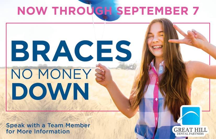 braces special offer no money down